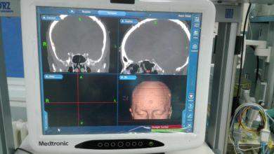 Photo of Zielonogórska laryngologia na światowym poziomie. Mamy nowy sprzęt