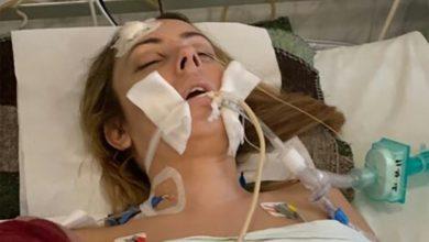 Photo of Beata została potrącona przez pijanego kierowcę. Zaczęła się walka o powrót do zdrowia