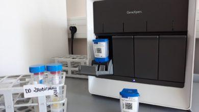 Photo of Testy na koronawirusa są już w Zielonej Górze. Szpital kupił ich 6 tysięcy