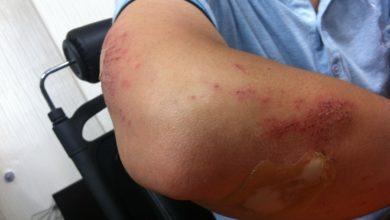 Photo of Jak powstają siniaki, jakie są ich objawy i jak je leczyć?